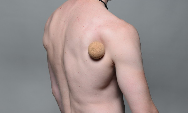 Infraspinatus: triger pointi i bolovi u zglobu ramena