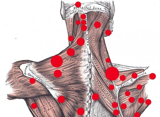 Uticaj ishrane na bol u leđima, gluteusu, kolenima ili vratu