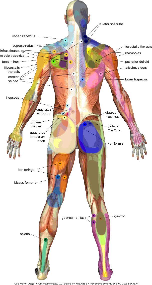 Kako trigger point-i utiču na držanje i bolove u leđima i ramenima