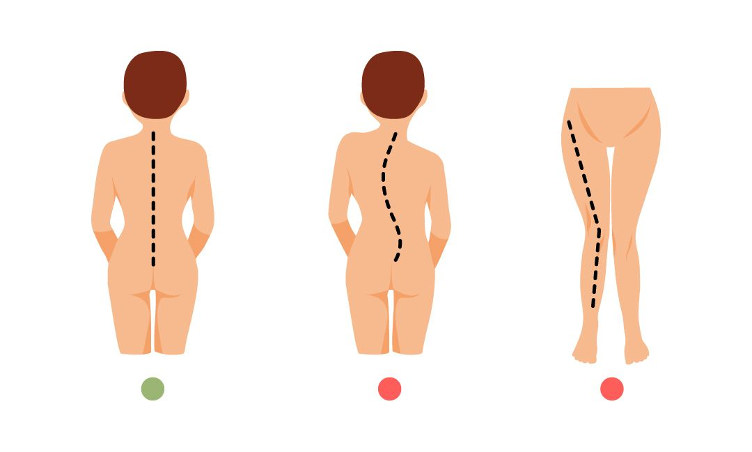 Neutralan položaj tela