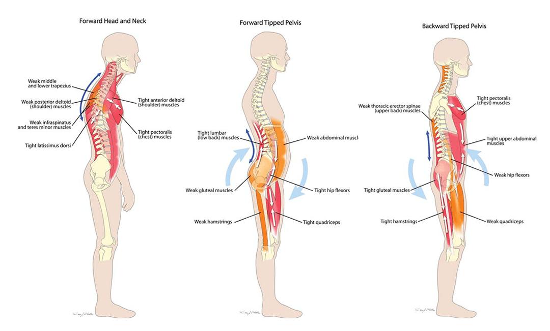 Popravi držanje i oslobodi se bolova u telu